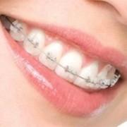 aparat dentar ceramic1