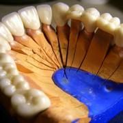 tehnica dentara02