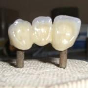 tehnica dentara03