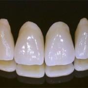 tehnica dentara04