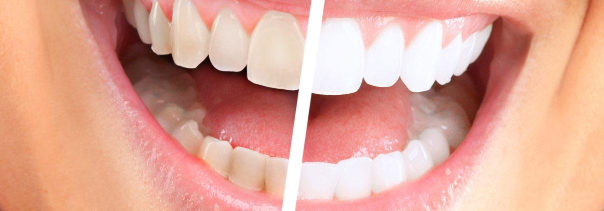 albirea dintilor2